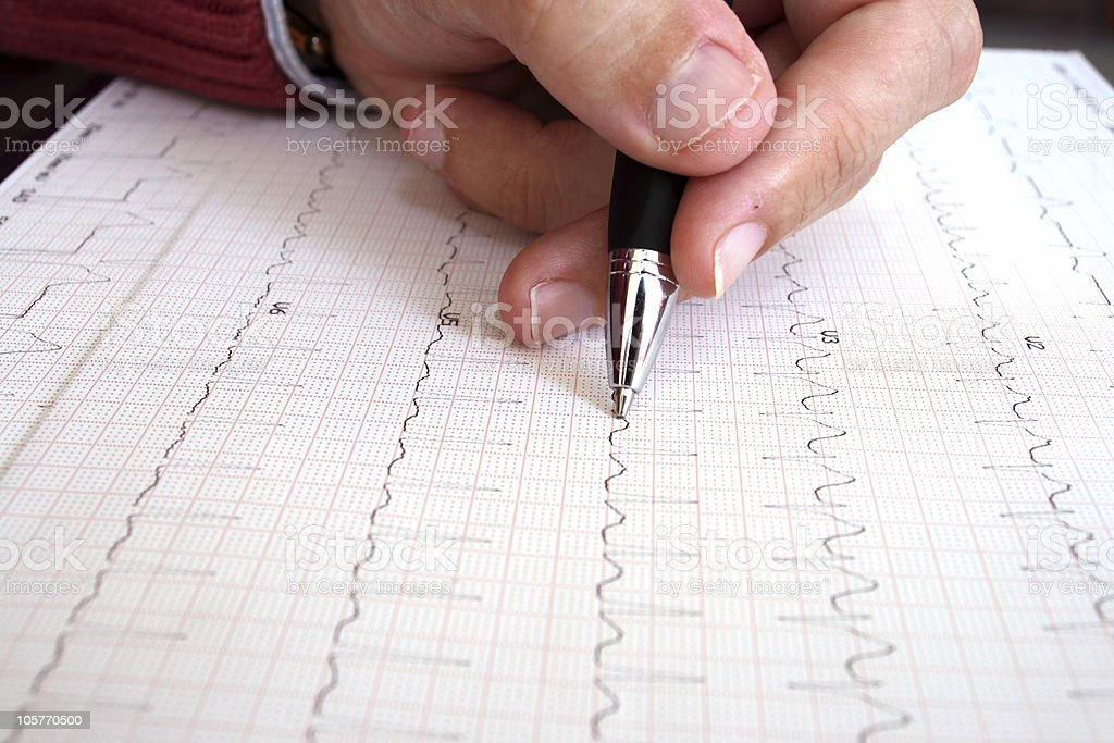 Revising an electrocardiogram royalty-free stock photo