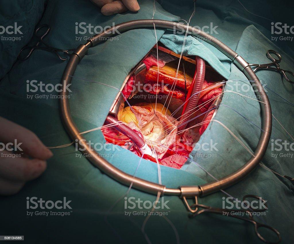 rheumatic mitral stenosis stock photo