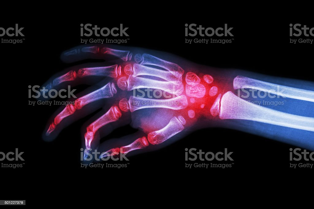 Rheumatoid arthritis , Gouty arthritis stock photo