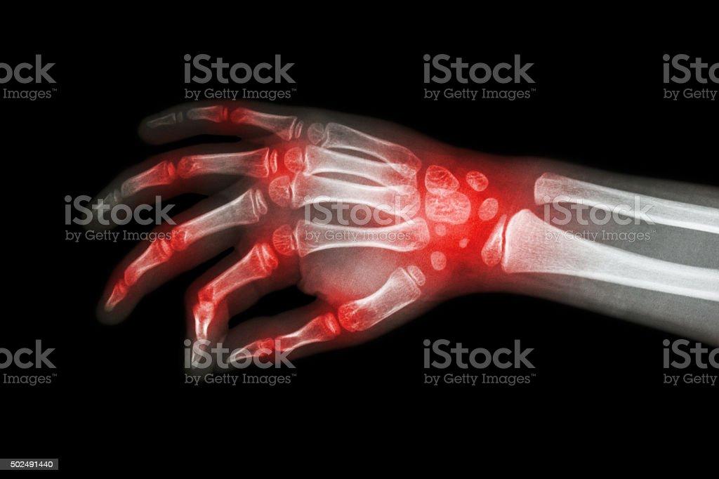 Rheumatoid arthritis , Gouty arthritis stock photo