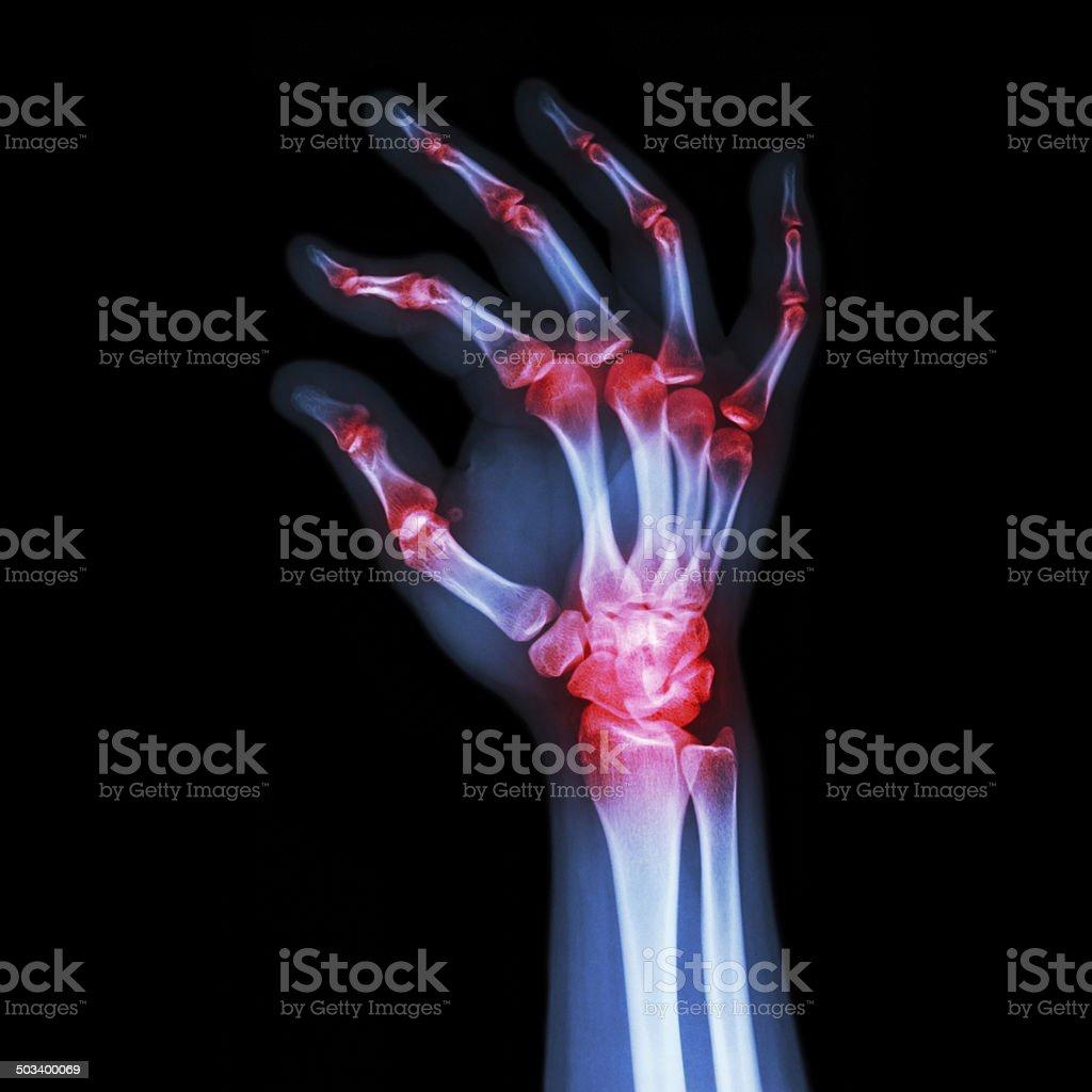 'Rheumatoid Arthritis , Gouty Arthritis' stock photo