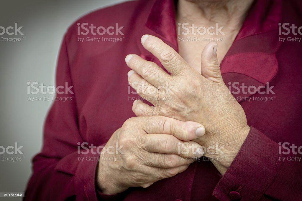 Rheumatoid arthritis hands stock photo