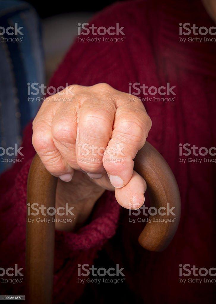 Rheumatoid arthritis on hand royalty-free stock photo