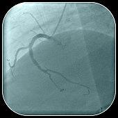 Right coronary artery