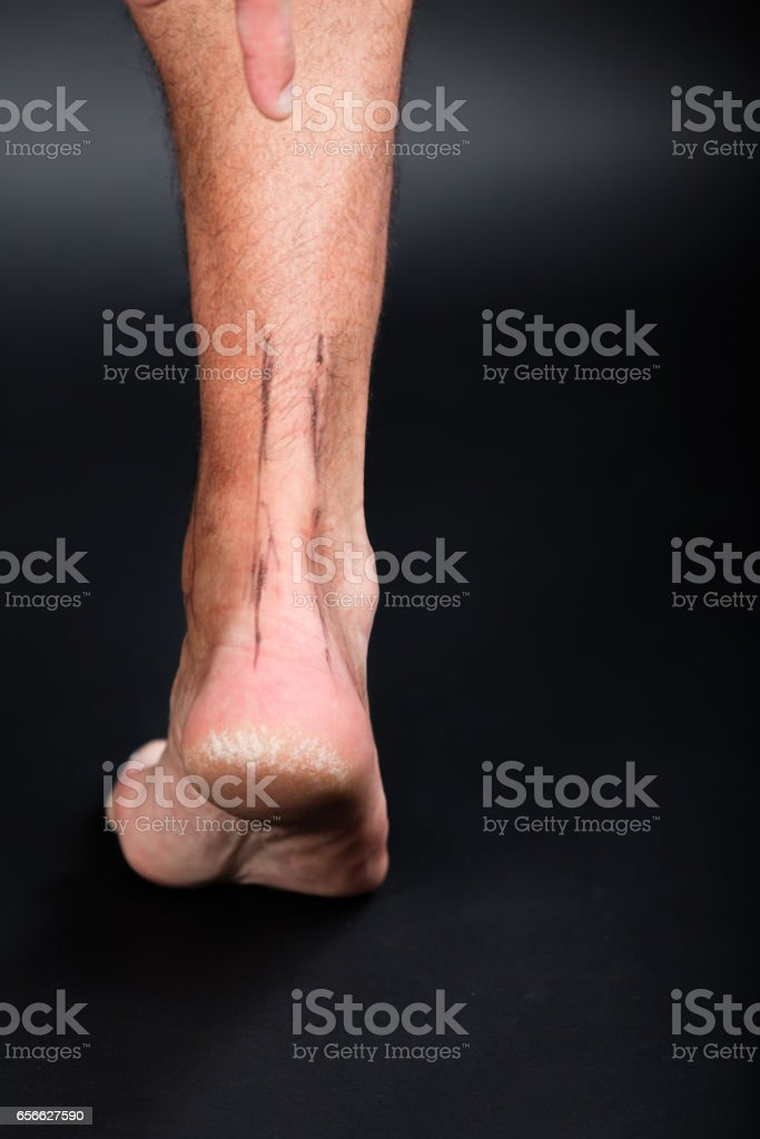Right foot with drawing of achilles tendon stock photo