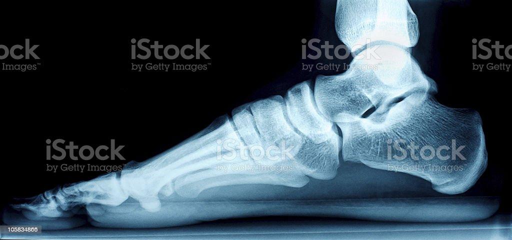 Right foot X-ray stock photo