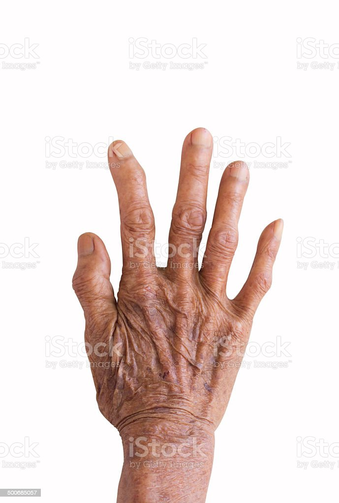 right hand of a leprosy isolated on white background stock photo