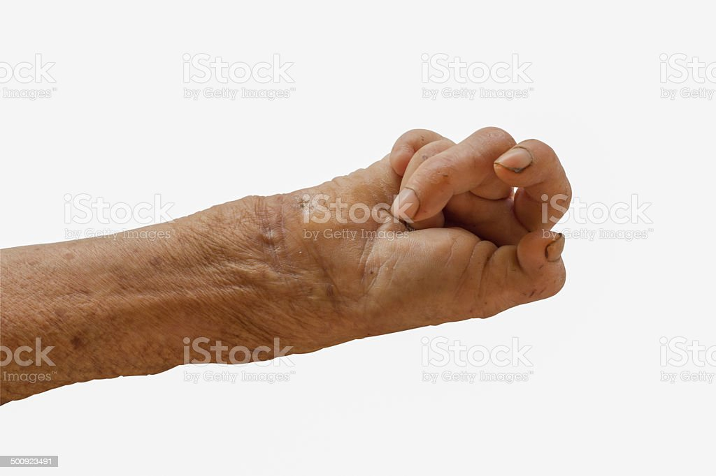 right hand of a leprosy stock photo