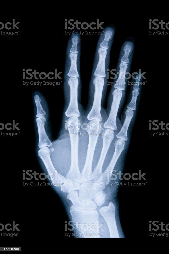 right hand x-ray XXL stock photo