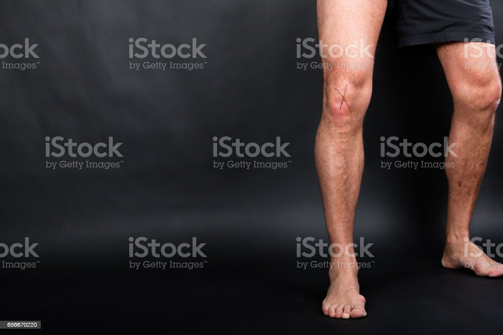 Right knee with cruciate ligaments stock photo