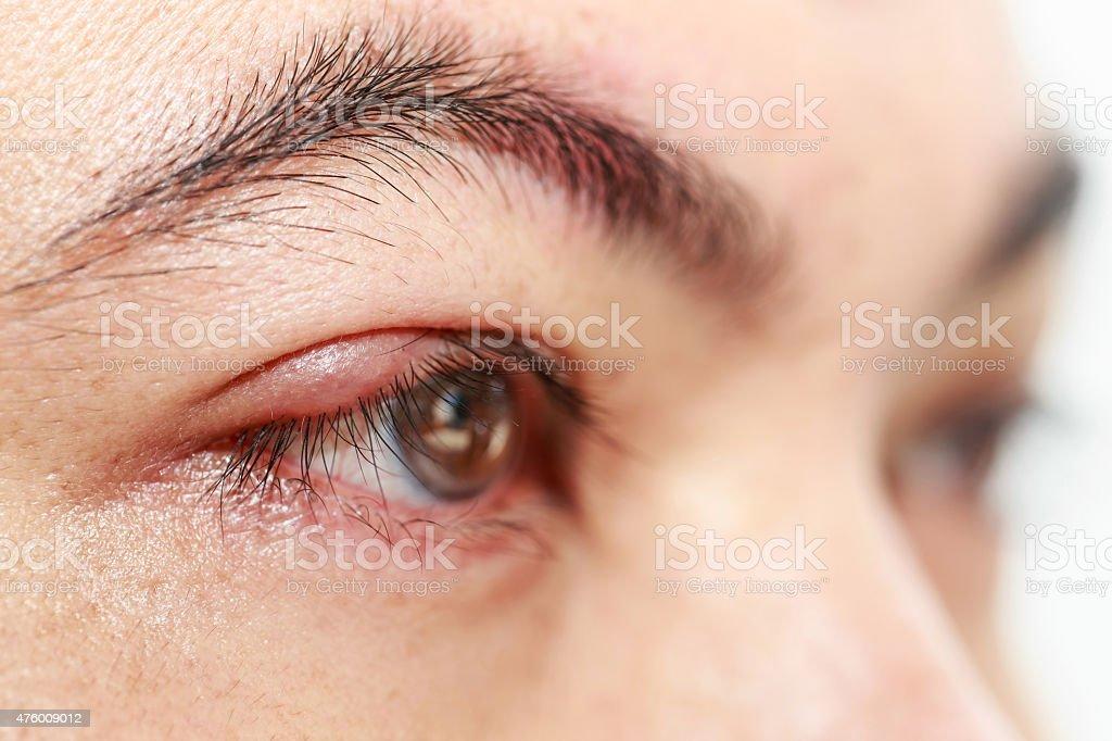 Right upper eye lid abscess 'stye or hordeolum' stock photo