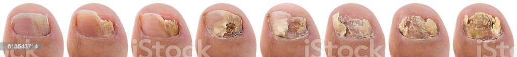 Ringworm of the Nail Sequence stock photo