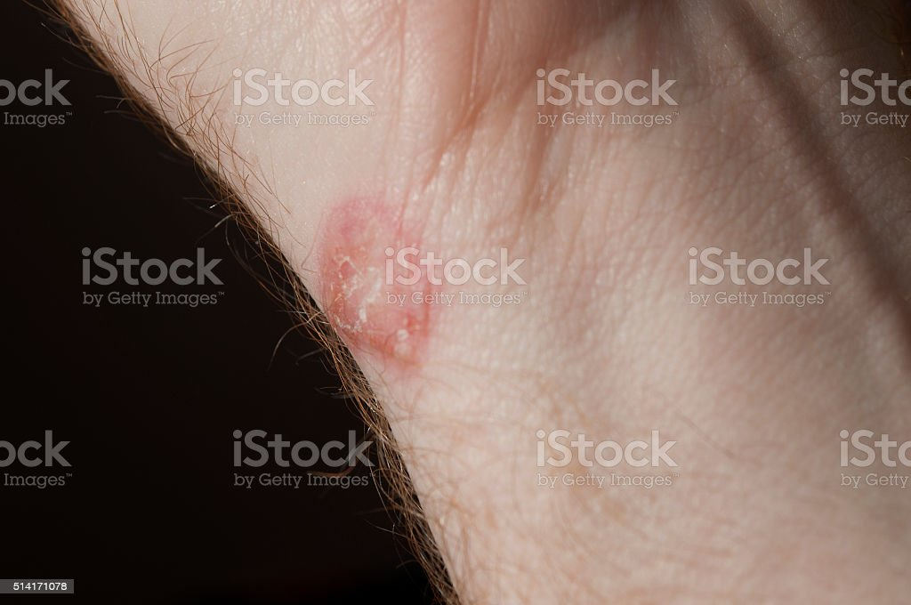 Ringworm on white man / Mycosis stock photo