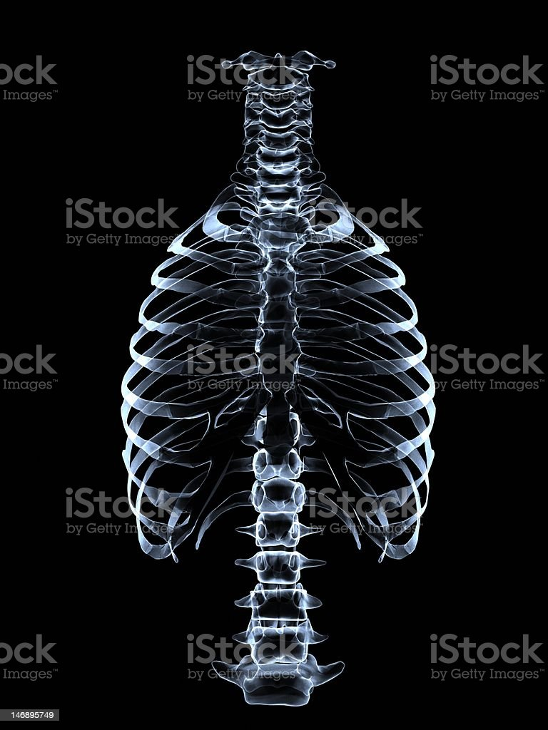 Roentgen  spinal coloumn and thorax stock photo