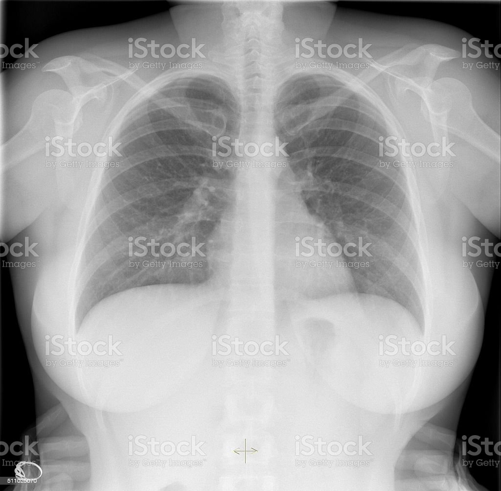 Roentgenogram of the chest in a healthy young woman stock photo