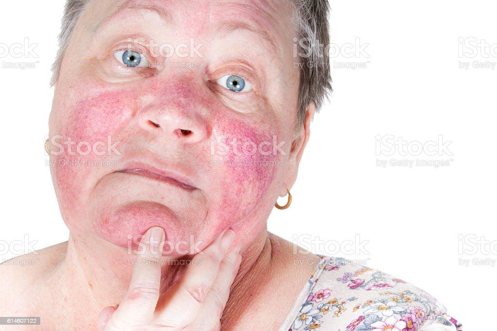 Rosacea, facial skin disorder, portrait of unhappy elderly woman stock photo