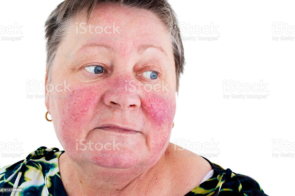 Rosacea, facial skin disorder, portrait of unhappy woman stock photo