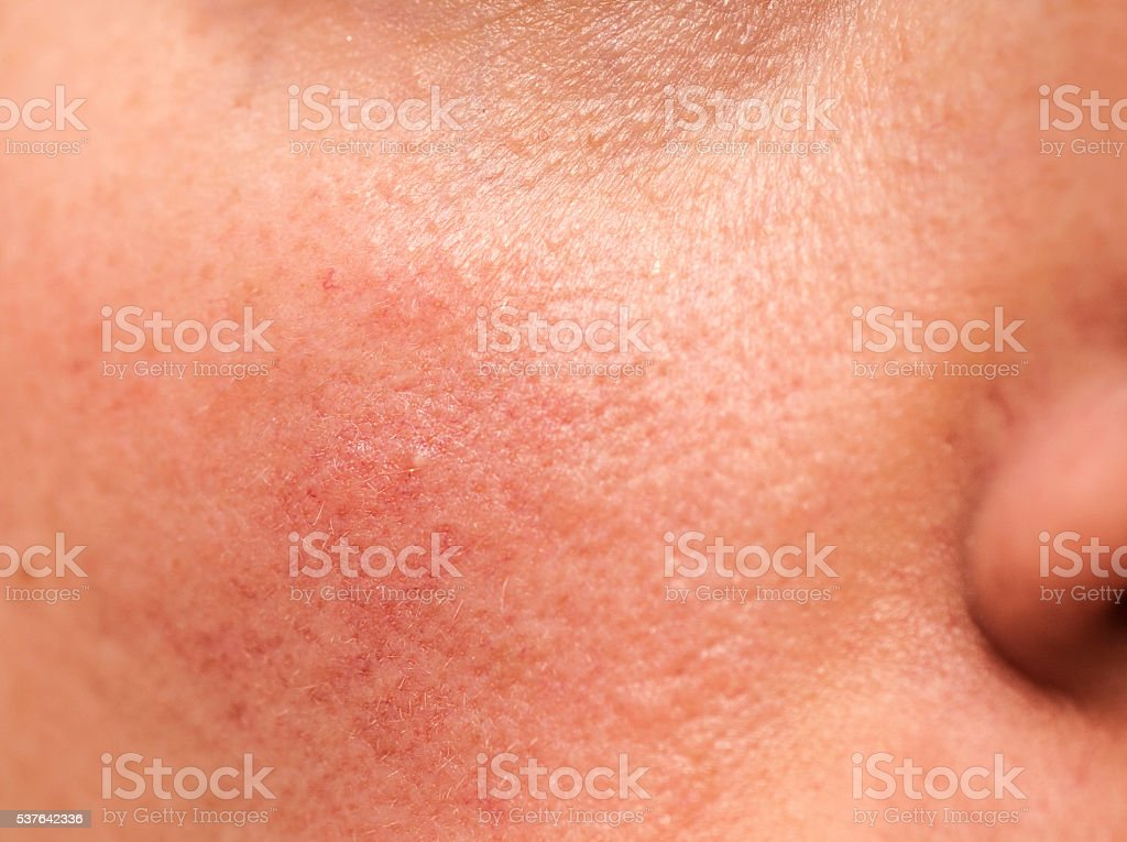 Rosacea on Skin stock photo