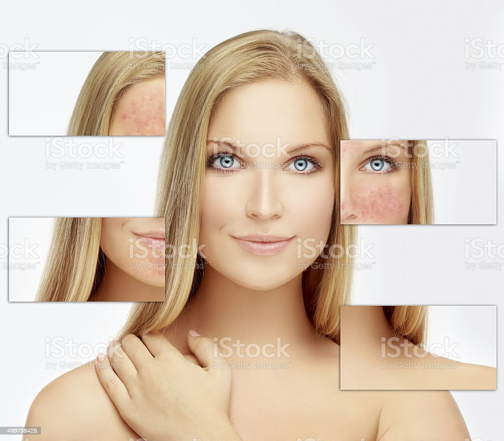 Rosacea stock photo