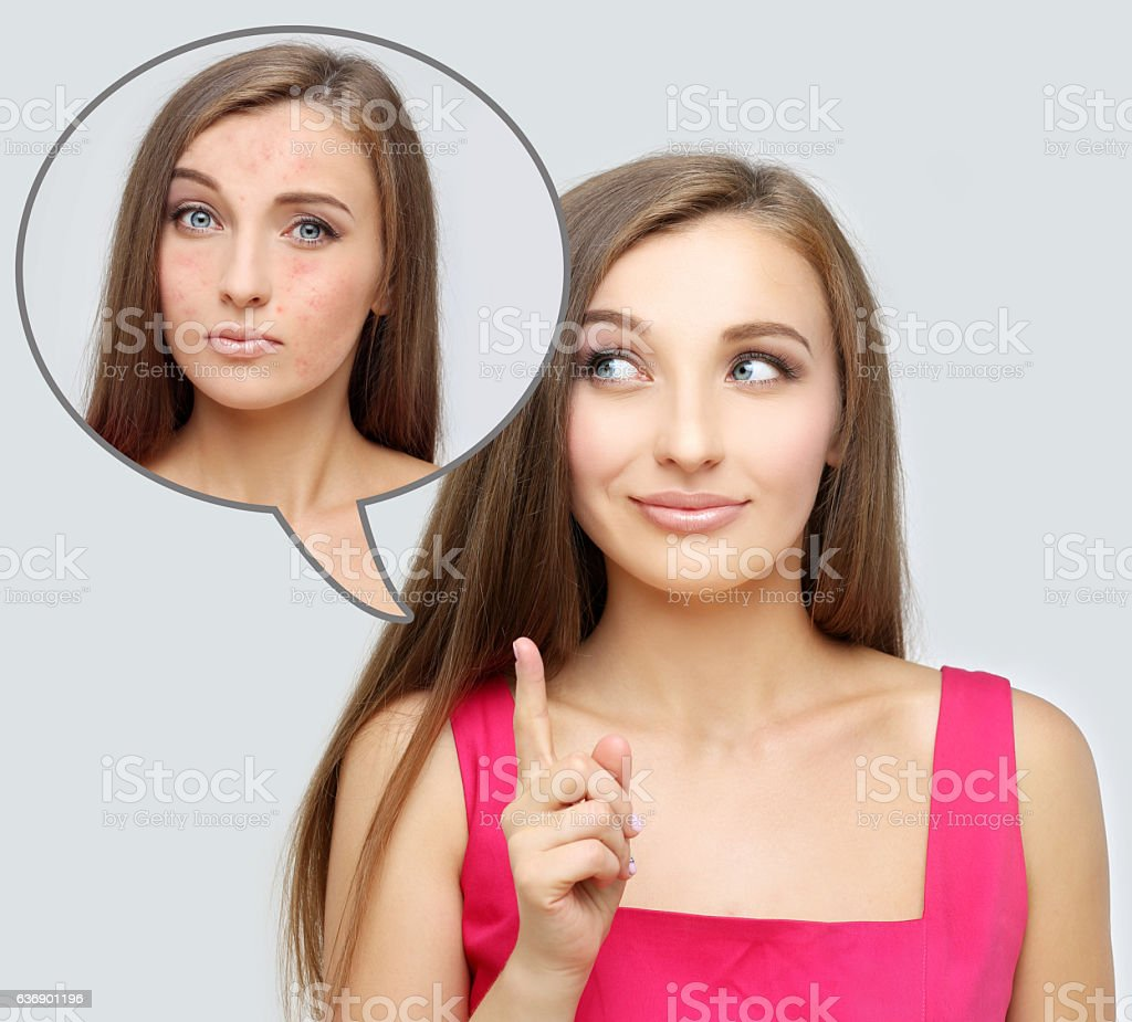 Rosacea.Girl  with problem and clear skin. stock photo