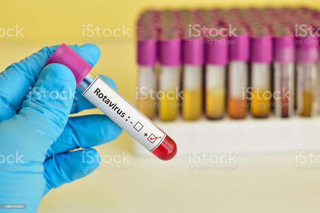 Rotavirus positive stock photo