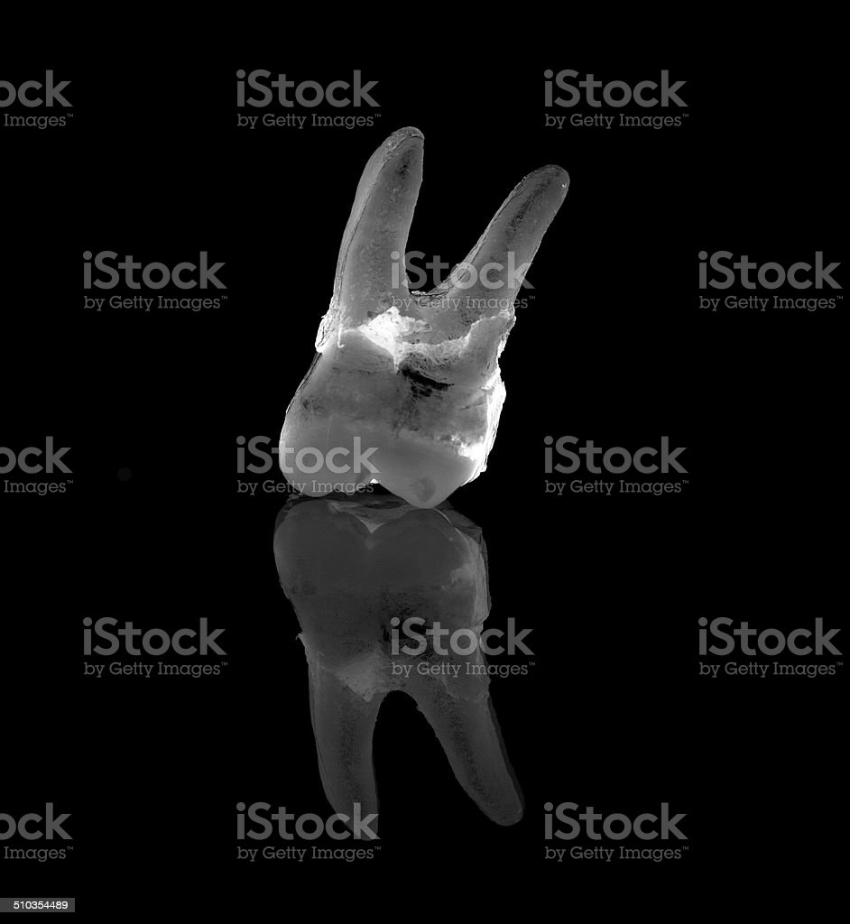 EXTRACTED rotten tooth x-ray stock photo