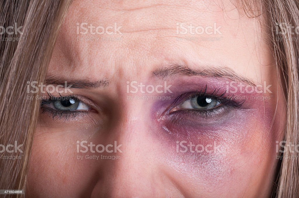 Sad eyes of a domestic violence victim stock photo
