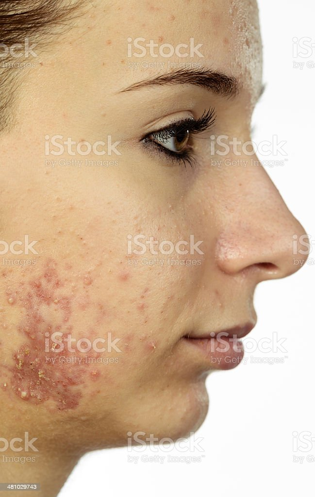 sad woman with acne stock photo