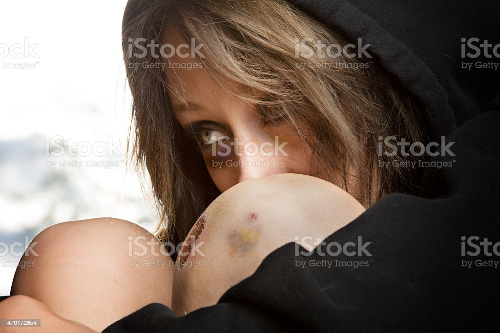 Sad Young Caucasian Woman at Great Risk with Black Eye stock photo