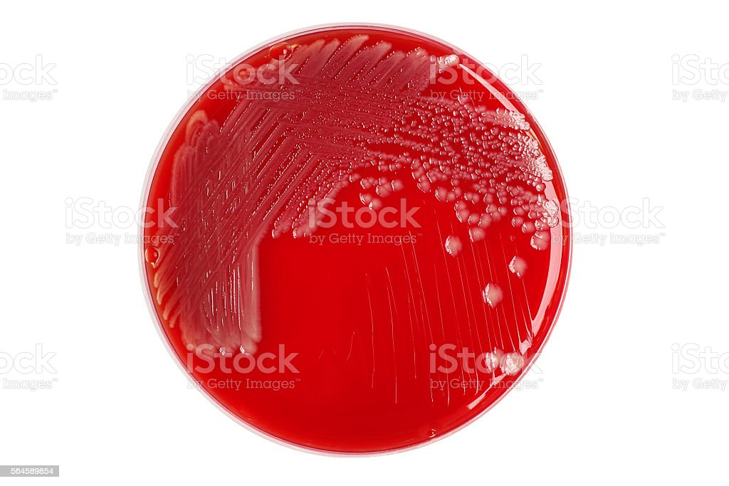 Salmonella enteritidis bacterial colonies on blood agar plate is stock photo