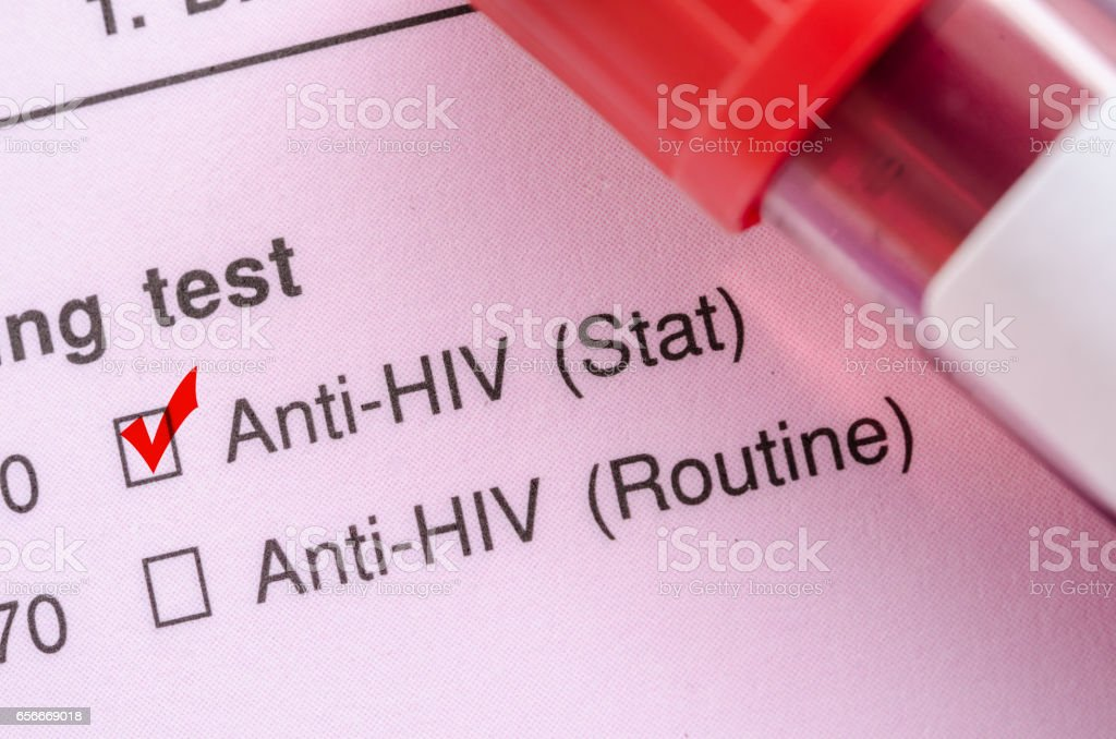 Sample blood collection tube with HIV test stock photo