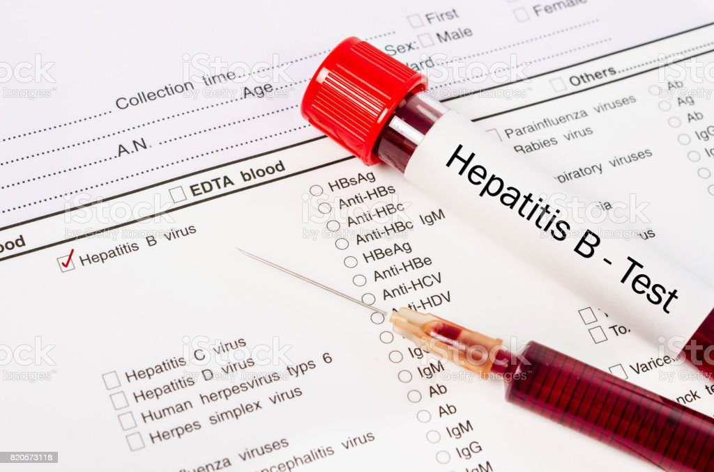 Sample blood in blood tube for hepatitis test stock photo