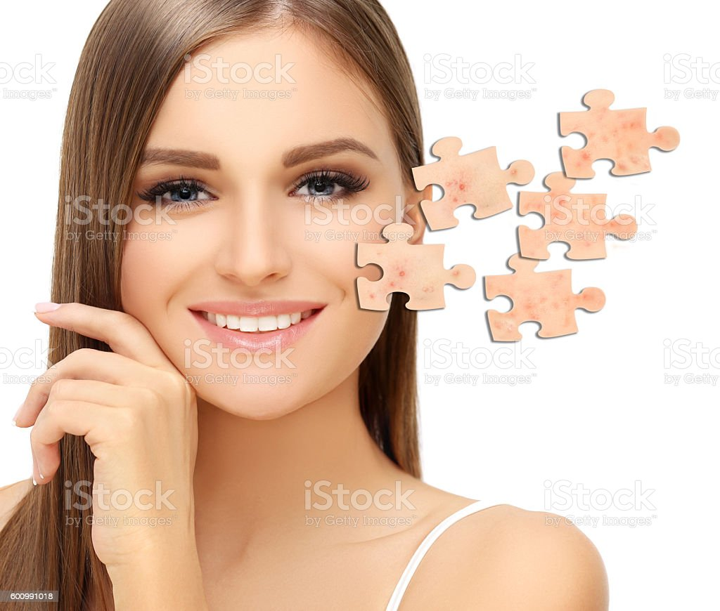 Say 'Good Bye' to Acne and Pimples stock photo