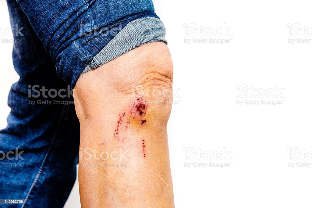scab stock photo