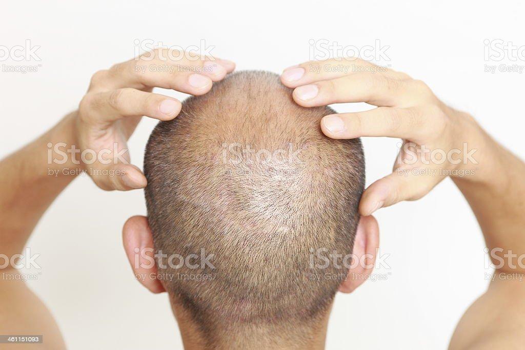scalp massage stock photo