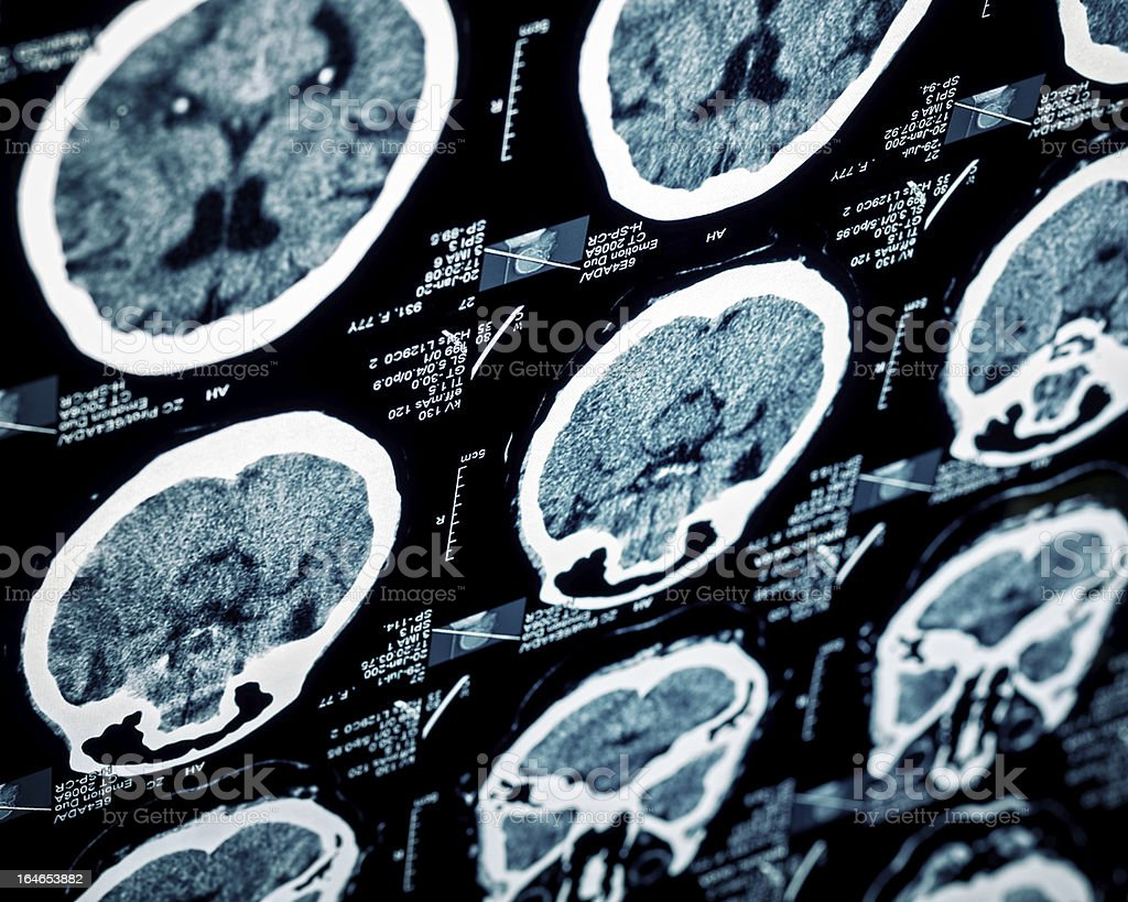 MRI scan head sections stock photo