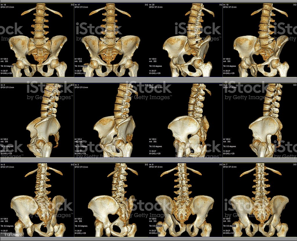 CT Scan Hip and Spine Area 3D stock photo