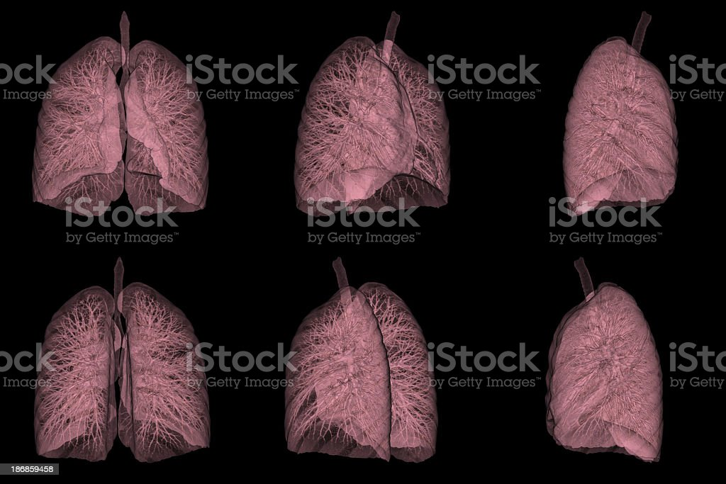 3D CT Scan Image of Human Lung royalty-free stock photo