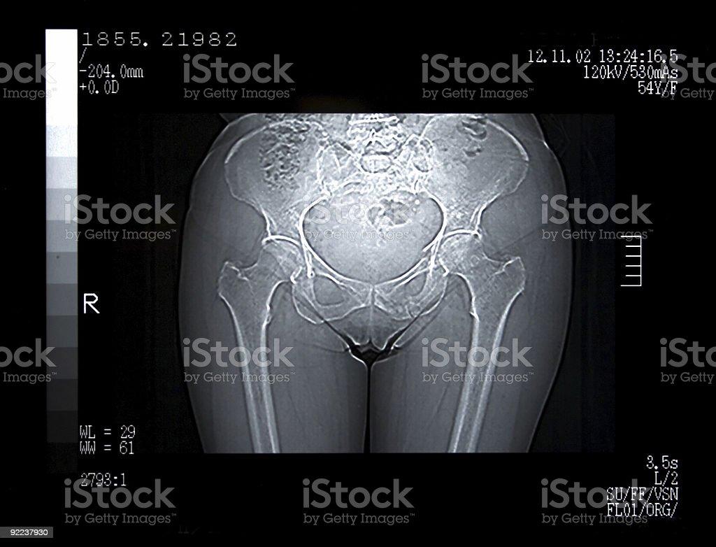 Scan of a Broken Pelvis stock photo