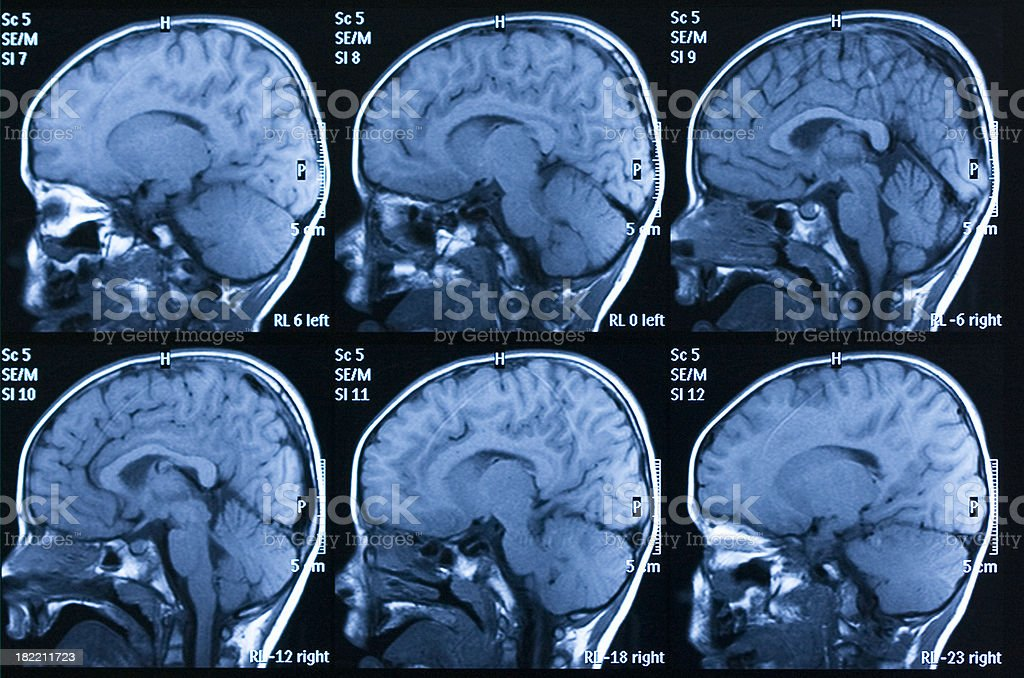 MRI scan of brain royalty-free stock photo