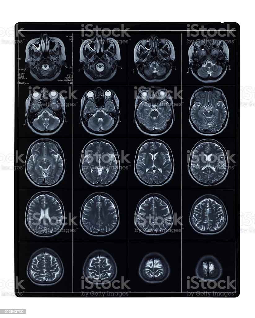 MRI scan of brain stock photo