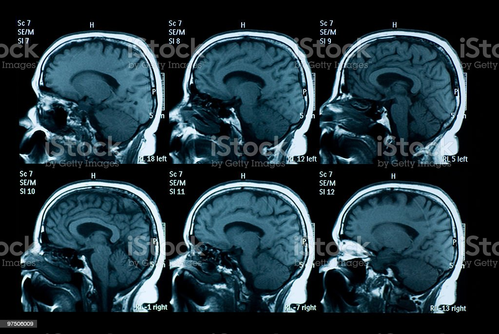 MRI scan of brain stock photo
