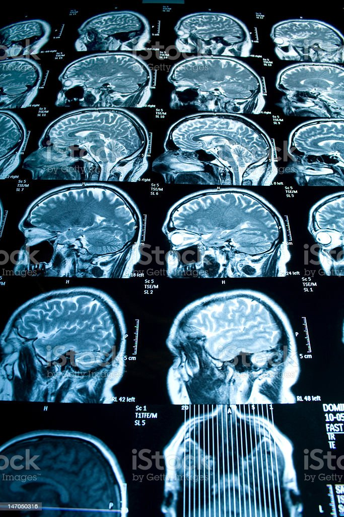 MRI Scan of Head royalty-free stock photo