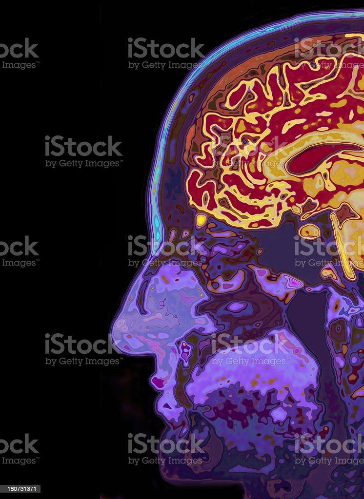 MRI Scan Of Head Showing Brain royalty-free stock photo