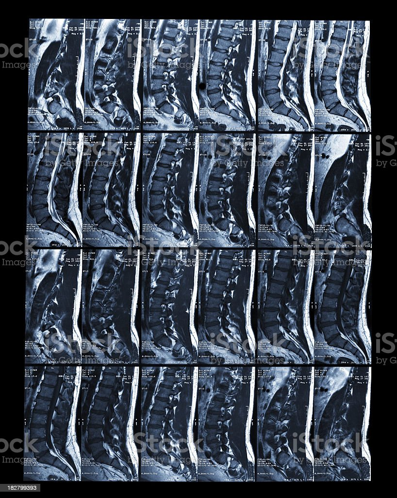 MRI Scan of Lumbar Spine stock photo
