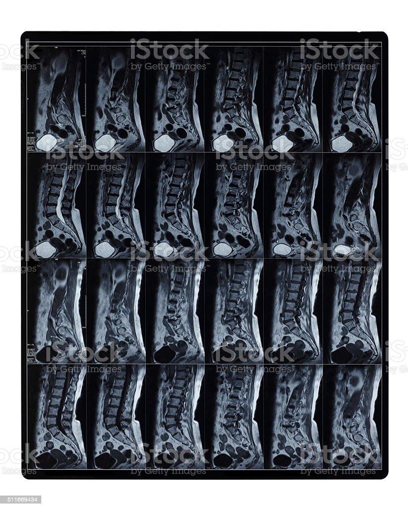 MRI Scan of Lumbar Spine stock photo