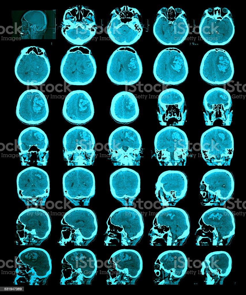 CT scan of the brain. Hemorrhagic stroke. stock photo