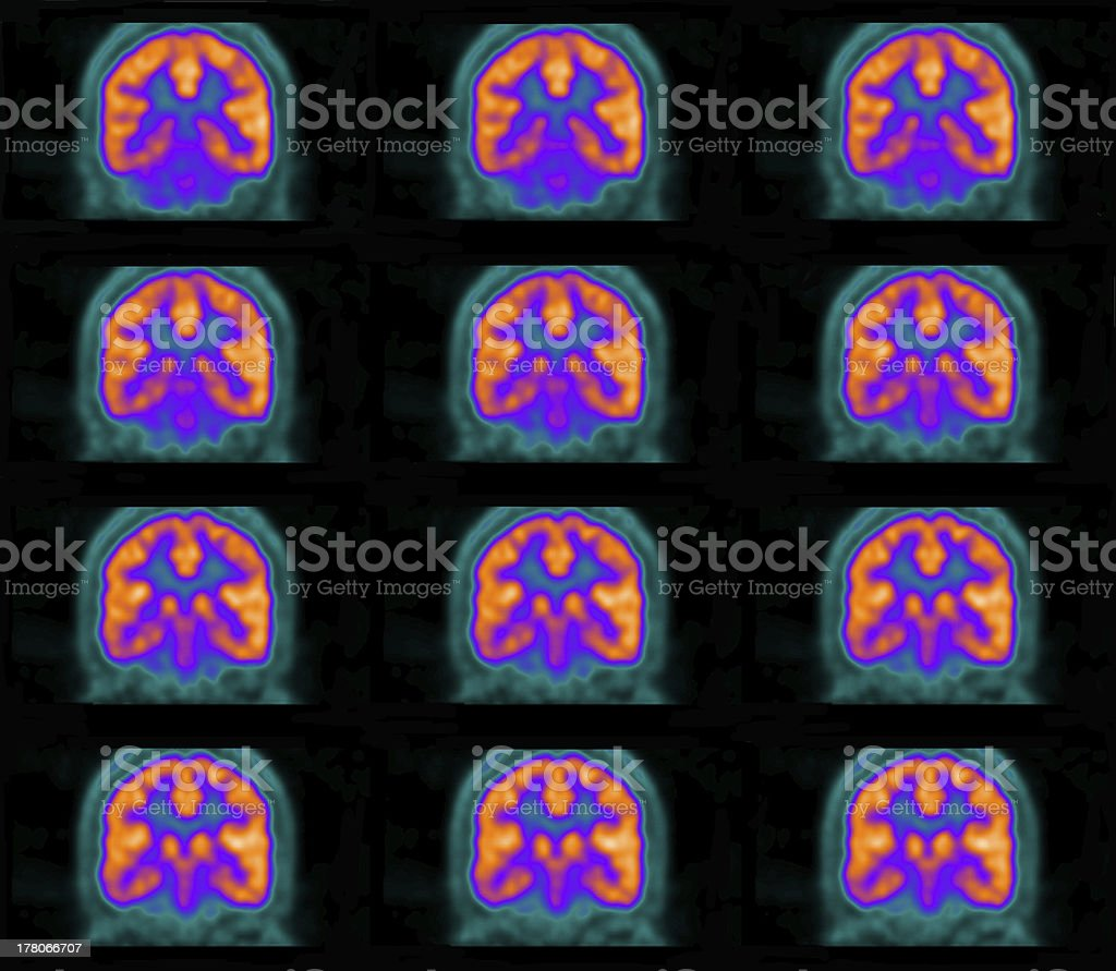 PET (positron emission tomography) scan of the brain royalty-free stock photo