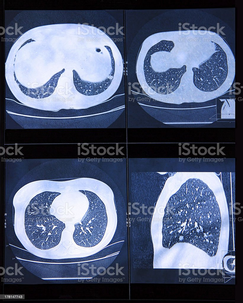 MRI scan of the human Lungs royalty-free stock photo