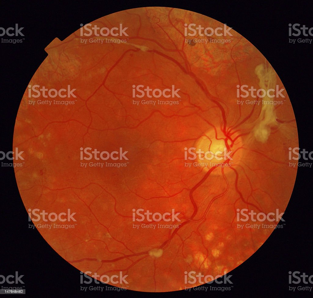 A scan of the retina in an eyeball stock photo